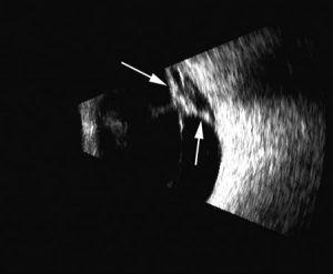 3. ábra Retinaleválás. A vastagabb fehér csíkként ábrázolódó retinát (fehér nyilak) sátorszerűen elemeli alapjáról az üvegtesti határhártya vékonyabb fehér csíkja.