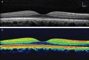 4. ábra A makula normális OCT képe kétféle színkóddal megjelenítve. A középső bemélyedt terület a fovea, ahol egy pontszerű fényforrás képe leképeződik a látás élettani folyamata során.