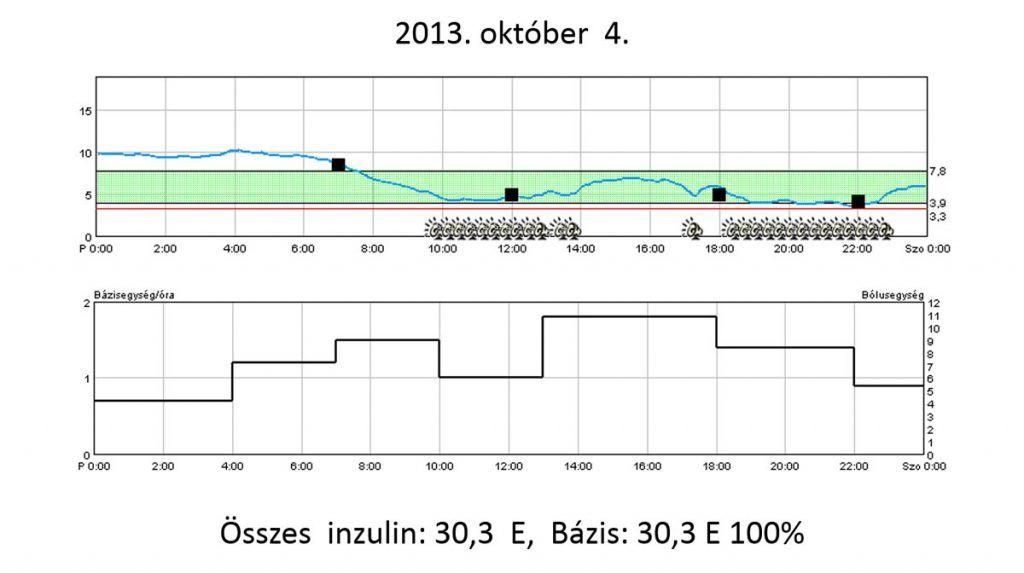 glukózszenzor-vizsgálat pumpakezelés mellett