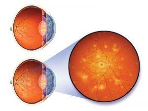 cukorbetegsége késői szövődményei - diabéteszes retinopátia