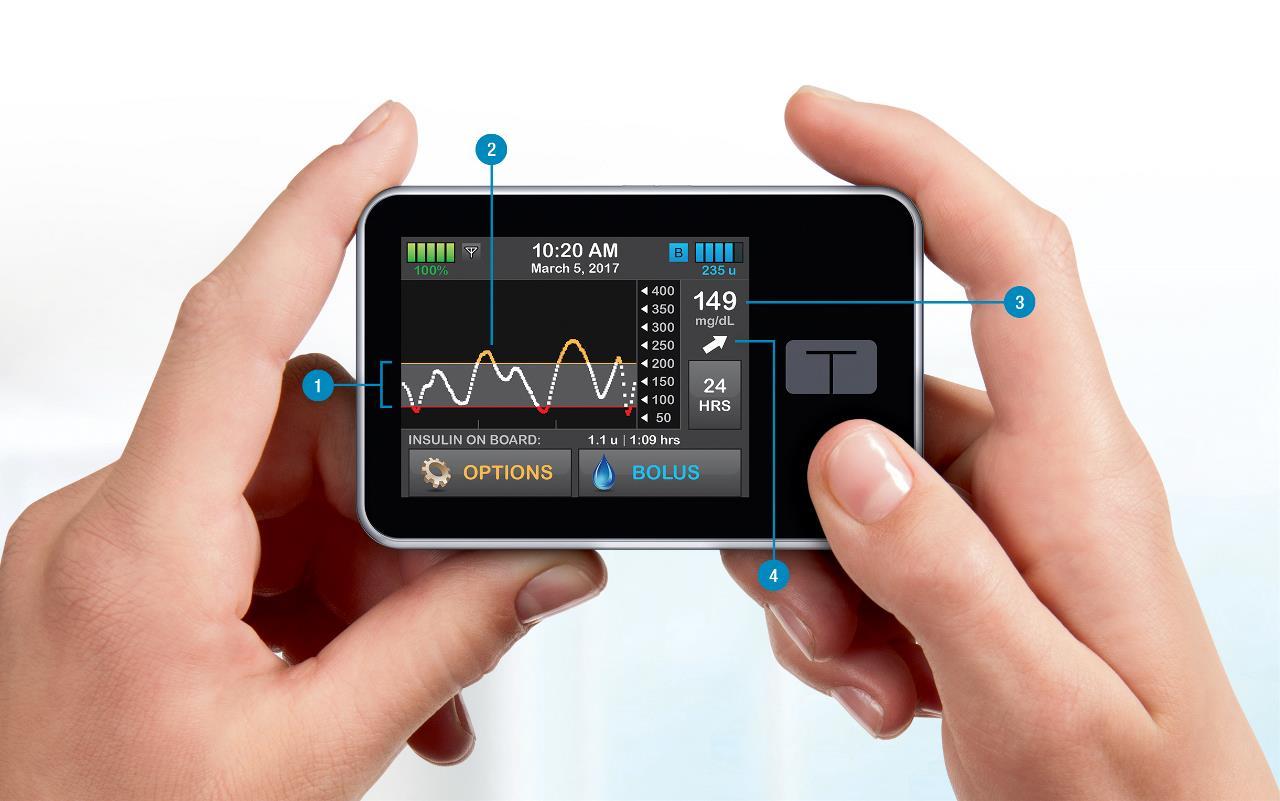 tandem inzulinpumpa Dexcom G5 szenzor