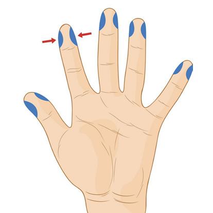 Ujjbegyszúrás - vércukormérés