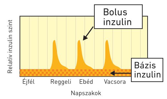 Inzulinrezsimek – bólus és bázis