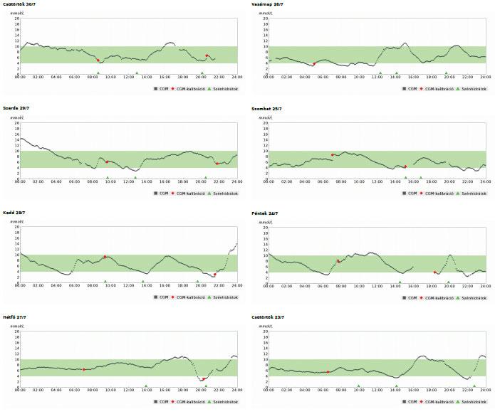 Dexcom szenzor inzulinpumpával összekapcsolva