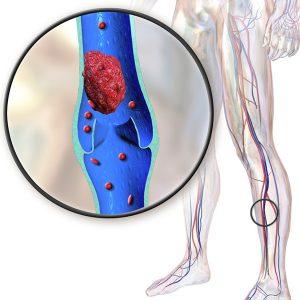 Mélyvénás trombózis