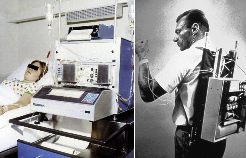 mesterséges hasnyálmirigy készülékek