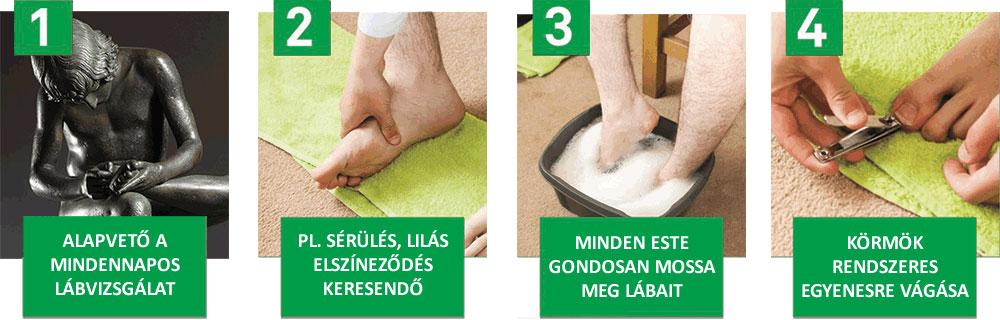 lábápolás cukorbeteg bőrszárazság