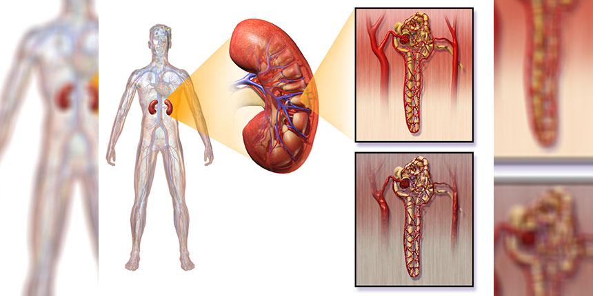 Diabéteszes nefropátia kezelése