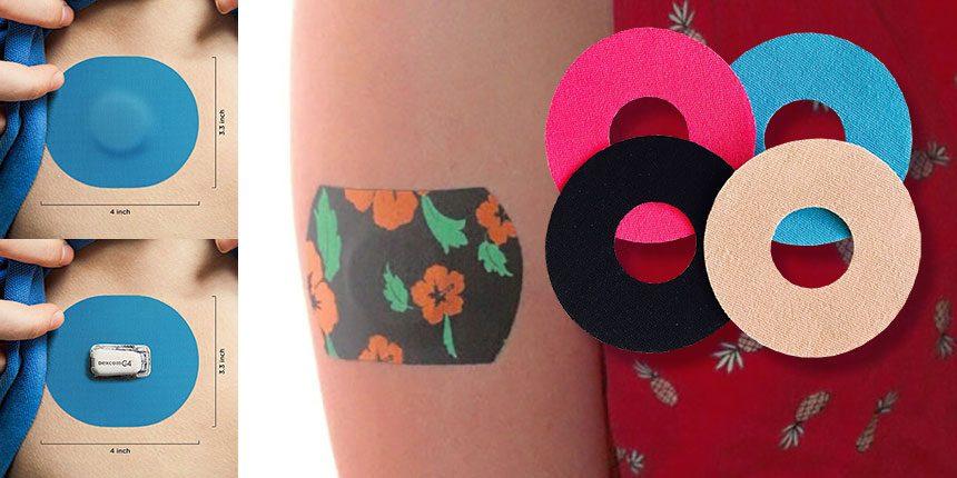 Bőrkomplikációk inzulinpumpát és folyamatos glukózérzékelőt viselő gyermekeknél