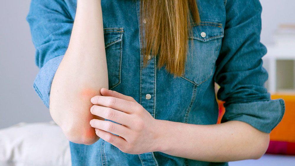 Bőrelváltozások - Diéta és psoriasis