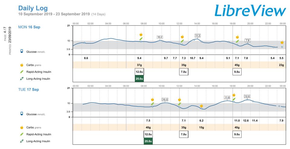 """Libre 2 szenzor – """"Óriási kényelem és egyben biztonság"""""""