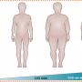 Double Diabetes (DD), vagyis kettős, 1-es és 2-es típusú diabétesz
