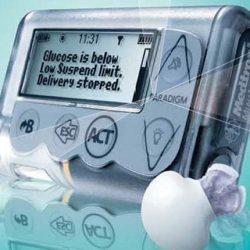 inzulinpumpa kezelés - Bázis és Bólus inzulin - milyen pontosan adagolnak az inzulinpumpák?
