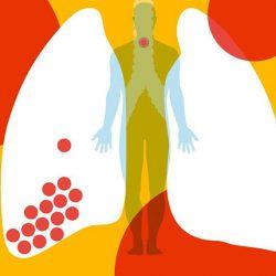 COVID-19 rizikófaktorai - idős, asztmás és cukorbeteg férfiak